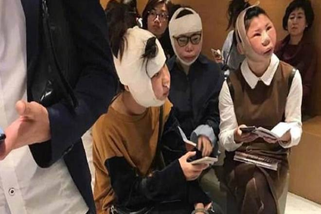 Chinese women detained at South Korea immigration after plastic surgery